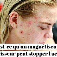 Est-ce qu'un magnétiseur guérisseur peut stopper l'acné ?